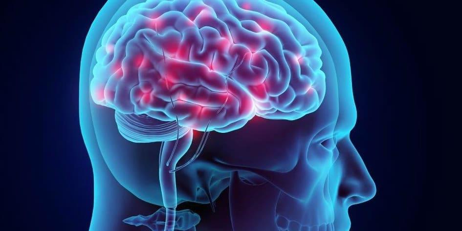 Beyin Kanaması Nedir?