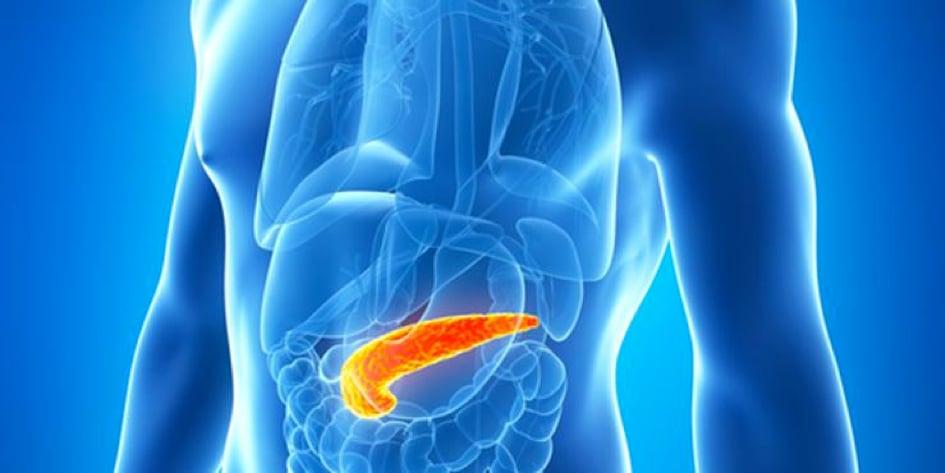 Endokrin Pankreas Tümörleri