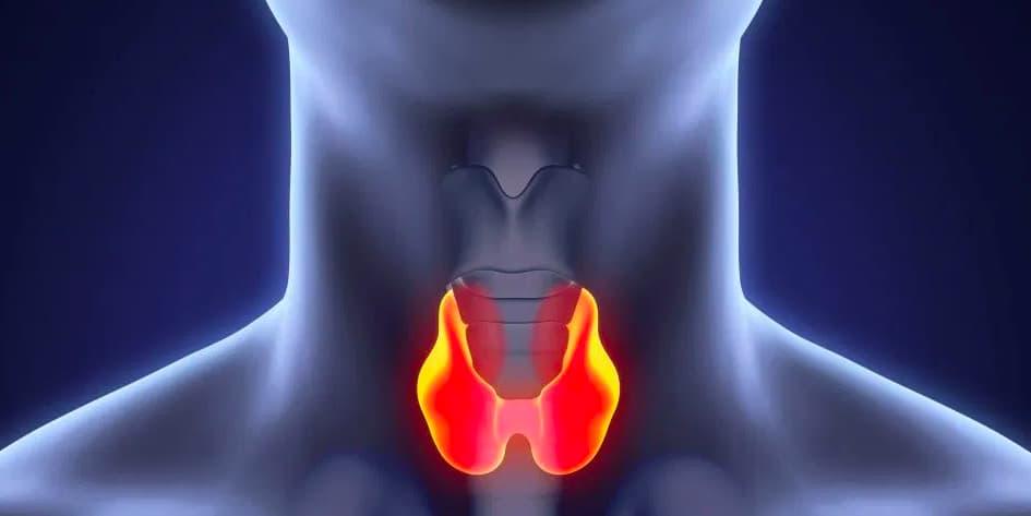 Симптомы, причины, диагностика и лечение рака щитовидной железы